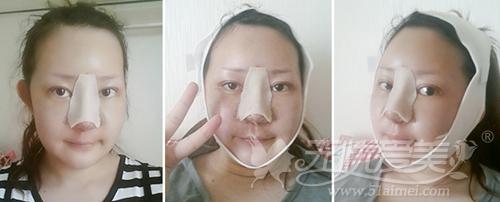 杨慧媛在韩国灰姑娘做面部轮廓+吸脂手术后1个月