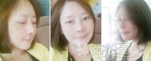 杨慧媛在韩国灰姑娘做面部轮廓+吸脂手术后3个月