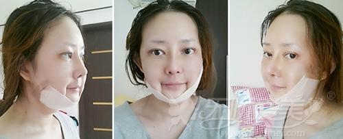 杨慧媛在韩国灰姑娘做面部轮廓+吸脂手术后2个月