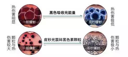 上海仁爱整形医院皮秒激光治疗不反黑