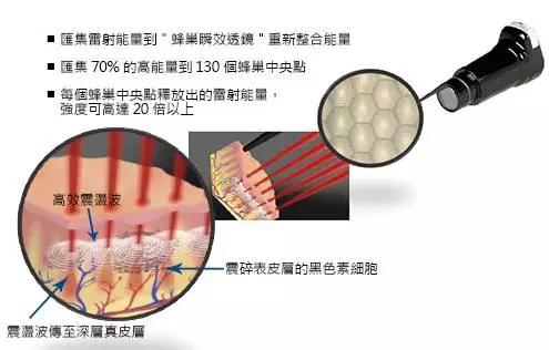 上海仁爱整形医院皮秒激光蜂巢技术