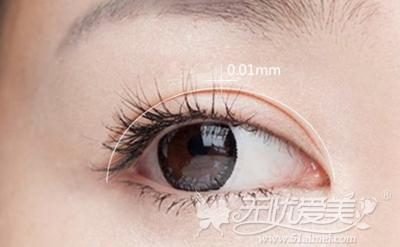 哈尔滨欧兰仁美韩式无痕双眼皮精确至0.01mm