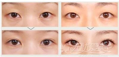 哈尔滨欧兰仁美韩式无痕双眼皮手术案例