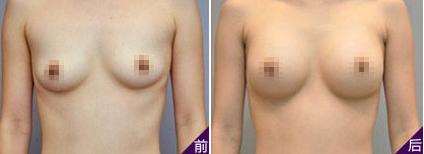 南京施美尔整形医院假体隆胸案例