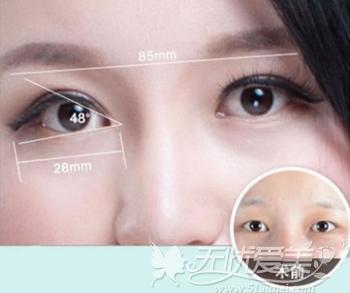 南昌佳美精雕双眼皮手术设计