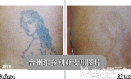 激光洗纹身前后对比案例