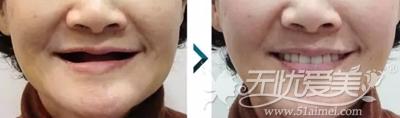 韩国优露牙科种植牙案例