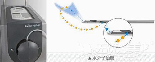 韩国原辰整形外科抽取脂肪设备——Haevest-jet