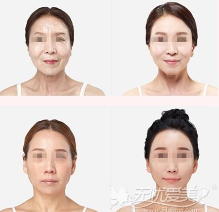 韩国原辰整形外科面部自体脂肪填充案例
