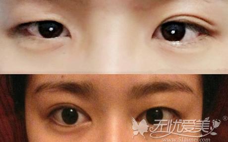 诺德双眼皮对比案例