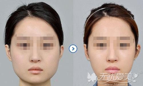 下颌角肥大整形手术前后对比案例