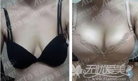 宁女士在长沙爱思特做假体隆胸后半年对比案例