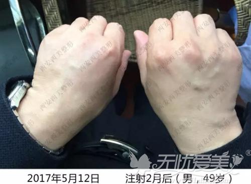 西安西京打造运相美手术后2个月