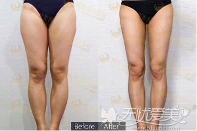腿部吸脂前后对比案例