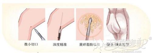 大腿吸脂手术原理