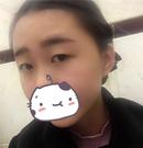 【真实经历】上海华美佀同帅双眼皮手术案例恢复全过程