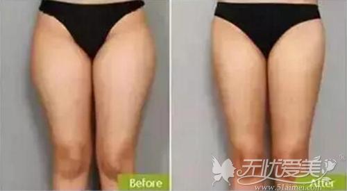 大腿吸脂减肥前后对比案例