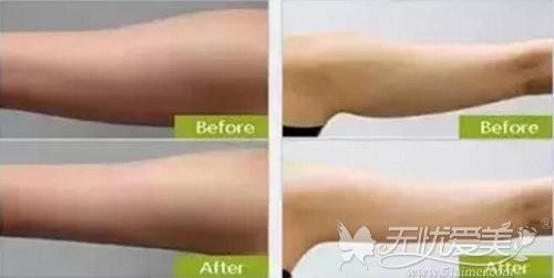 手臂吸脂减肥前后对比案例