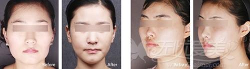 福州格莱美颧骨缩小术、下颌角整形手术案例