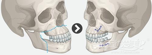 韩国ID整形医院双颚手术