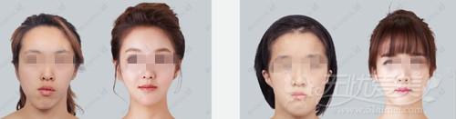 韩国ID整形医院双颚手术案例