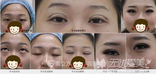 眼部综合整形手术一个月恢复情况
