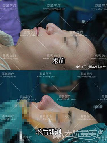 鼻综合失败修复前后对比案例