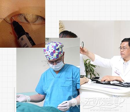 刘凤卓院长上睑下垂矫正手术设计