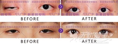 刘凤卓院长上睑下垂矫正手术案例
