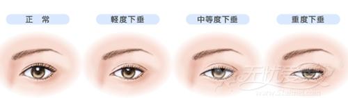 刘凤卓院长的上睑下垂矫正手术可以改善的情眼部况