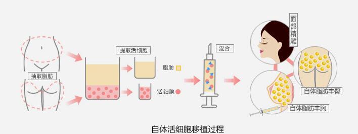 部脂肪_北海韩美医疗美容门诊部自体脂肪丰面-北海韩美医疗部