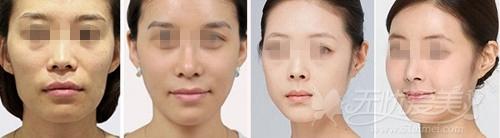 深圳自体脂肪移植心形脸案例