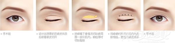 深圳微姿精雕双眼皮手术方法
