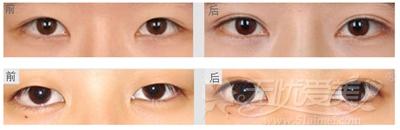 深圳微姿精雕双眼皮手术案例