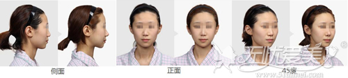 下颌角整形前后对比案例