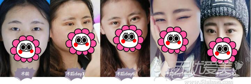 上海美莱双眼皮一个月恢复情况