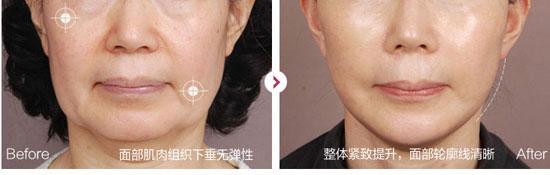 北京海医悦美整形青春线雕提升术效果对比图