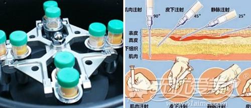 长沙艺术三和自体活细胞移植术