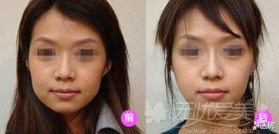 面部吸脂前后对比案例