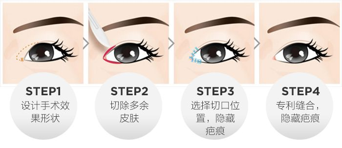 郑州中原黄大同开内眼角手术特点