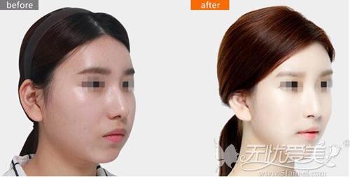 面部比例综合调整对比案例