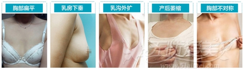 深圳富华隆胸手术可以改善的胸型