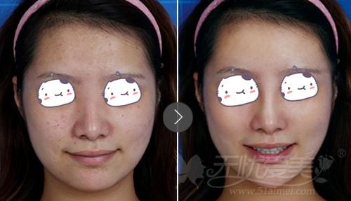 福州台江线雕隆鼻+比尿酸丰下巴案例-福州台江6月青春季两人同行1人图片