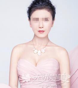 深圳美莱汤医生隆胸手术后照片