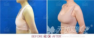 深圳汤医生做隆胸手术术前术后对比照片