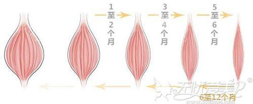 注射瘦脸针后的效果过程变化