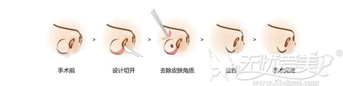 适合鼻翼过宽过厚者手术原理
