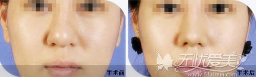 鼻尖缩小术前后对比案例