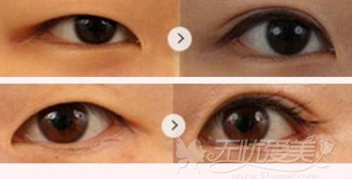 武汉同济周光瑜医生双眼皮手术案例