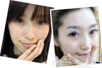 长沙华韩华美祛痘痘、痘印案例